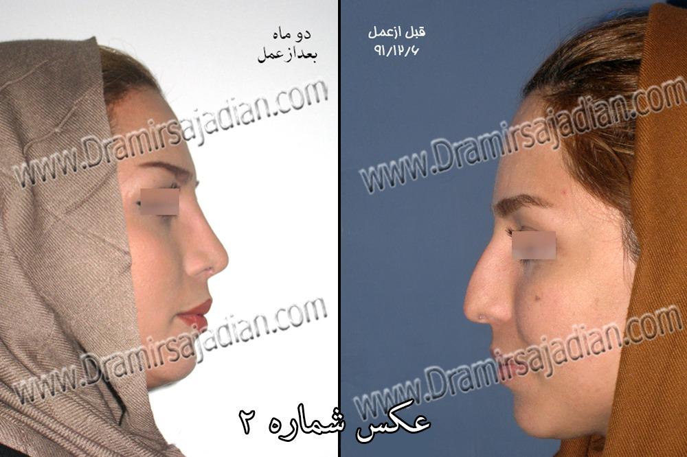 نمونه جراحی بینی دکتر امیر سجادیان