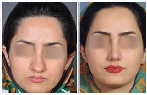 دکتر روشنی جراح بینی در شیراز
